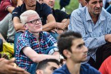 Albínó Egy albínó menekült ül a társai között 2015 szeptember 13-án, miután Nagyszentjánoson társaival együtt leszállították őket egy Bécsbe tartó vonatról.